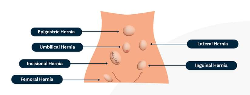 What Happens after Laparoscopic Hernia Surgery?